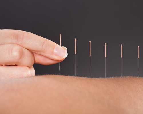 Dry Needling Therapy Pinpoint solution to pain
